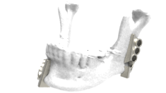 LaserImplant Mandibular cutting and drilling guides
