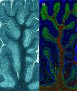 Imaging of human brain tissue